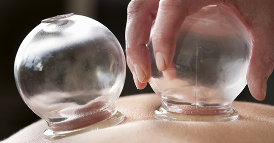 7 FAQs about Massage Cupping answered by an Expert